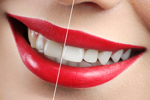 Dr. Holland | Teeth Whitening | Top Rated Dentist Lawndale