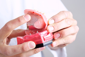 Dr. Holland   Implant Supported Dentures   Top Rated Dentist Lawndale